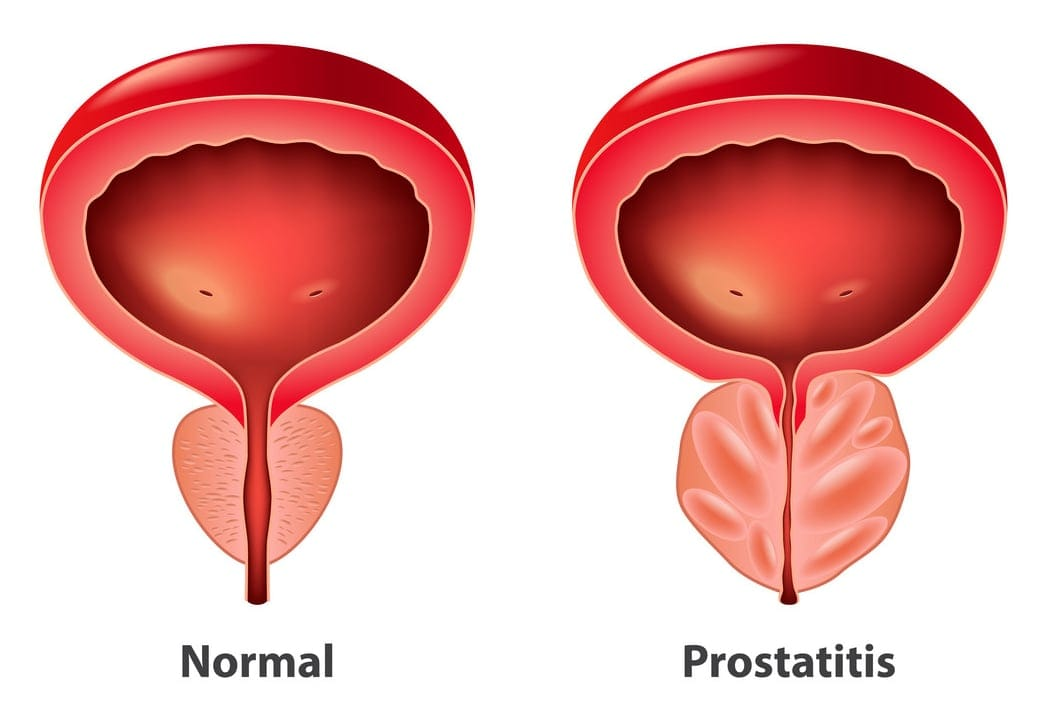 The Prostate Gland